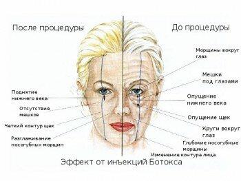 Эффект от инъекций Ботокса