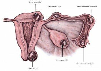 Где бывает внематочная беременность