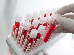 Анализ крови при планировании беременности