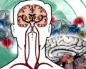 Кровообрщение головного мозга