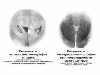 Пример проходимых и непроходимых труб при методе гидросальпинографии