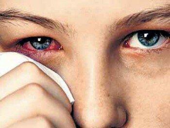 Раздражение глаз при попадании соринки