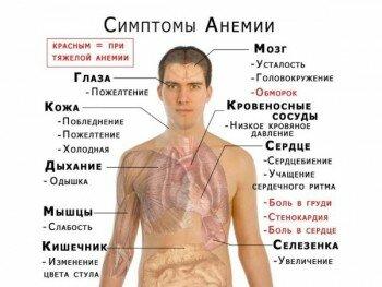 Анемия - причина сонливости