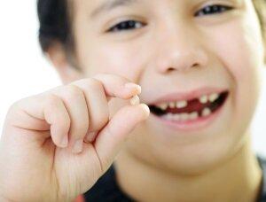 Выпадение зуба у ребенка - символ взросления