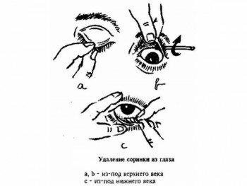 Удаление соринки из глаз